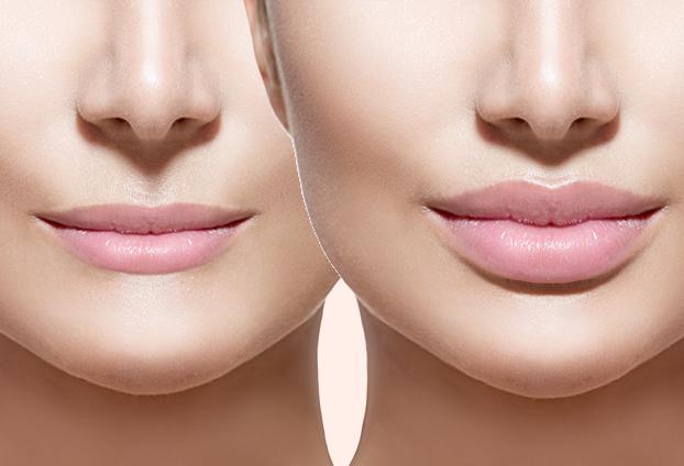 Jakie są najlepsze metody korekty ust?