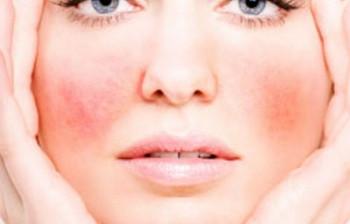 Jak leczyć zaczerwienienie twarzy?