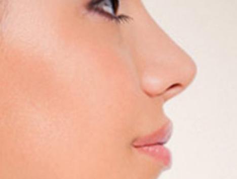 Niechirurgiczna korekta nosa – bezpieczna alternatywa dla rynoplastyki?
